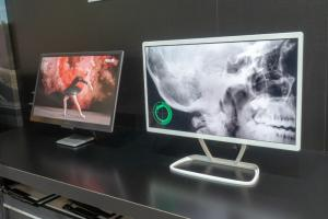 JOLED medical and ASUS OLED monitor prototype (FineTech Japan 2018)